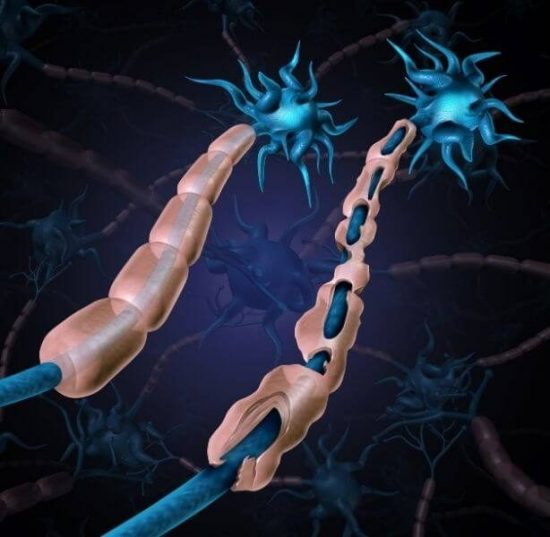 computer animation MS nerve cells in brain